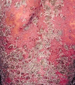 牛皮癣会对身体造成哪些危害