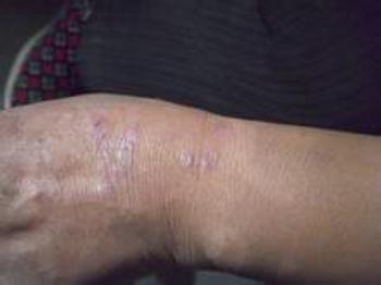 如何诊断手臂牛皮癣