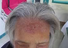 头部牛皮癣的治疗方法都有哪些